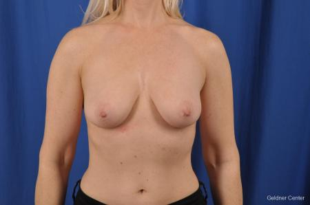 Breast Lift: Patient 19 - Before Image 1