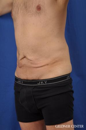 Abdominoplasty For Men: Patient 2 - Before and After Image 4