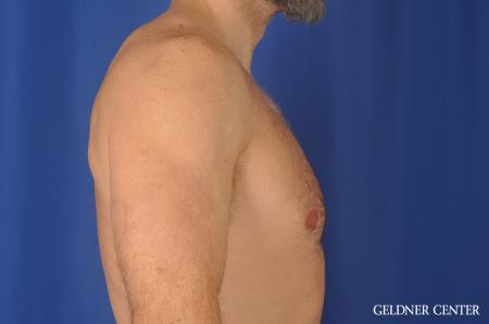 Gynecomastia: Patient 9 - Before Image 2