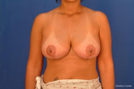 Breast Reduction Lake Shore Dr, Chicago 2417 - After Image
