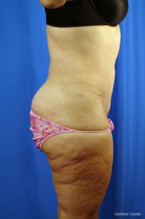 Liposuction: Patient 10 - After Image 2