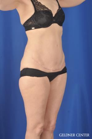 Chicago Abdominoplasty 11851 -  After Image 2