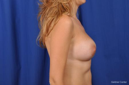 Breast Augmentation Streeterville, Chicago 2370 -  After Image 2