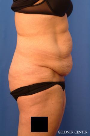Liposuction: Patient 23 - Before Image 3
