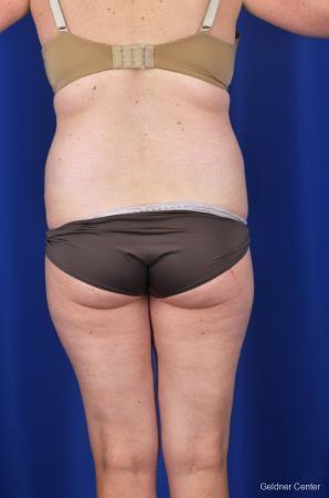 Liposuction: Patient 6 - Before Image 4