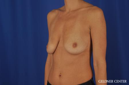 Breast Lift Streeterville, Chicago 5477 - Before and After Image 4