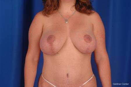 Complex Breast Augmentation Hinsdale, Chicago 2300 - After Image