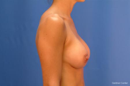 Chicago Breast Augmentation 2521 -  After Image 2