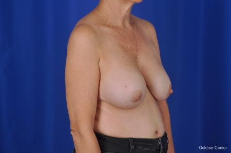 Breast Augmentation Lake Shore Dr, Chicago 2057 - Before Image 3