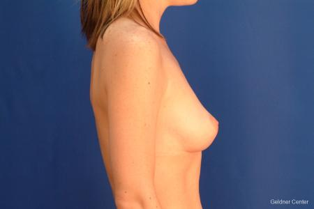 Chicago Breast Lift 2537 -  After Image 2