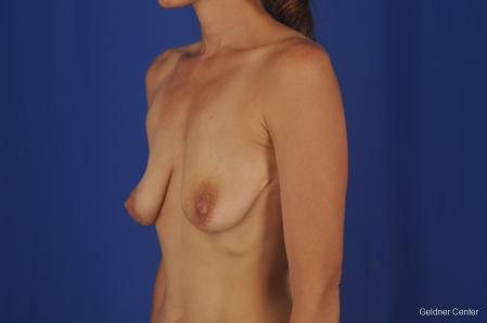 Breast Augmentation: Patient 157 - Before and After Image 4