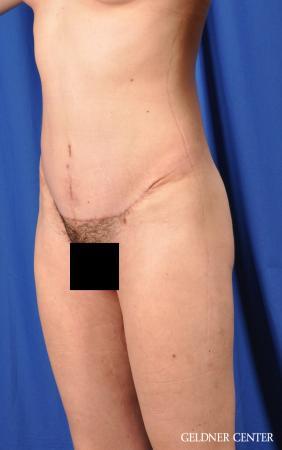 Liposuction: Patient 41 - After Image 5