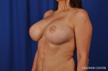 Chicago Breast Lift 5543 -  After Image 4