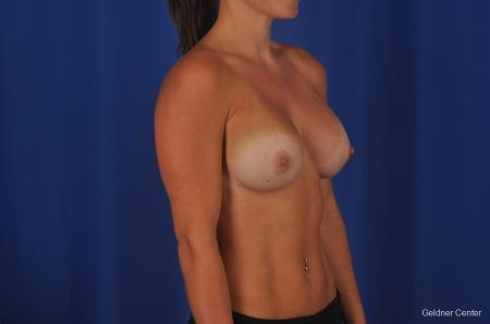 Chicago Breast Augmentation 2393 -  After Image 2