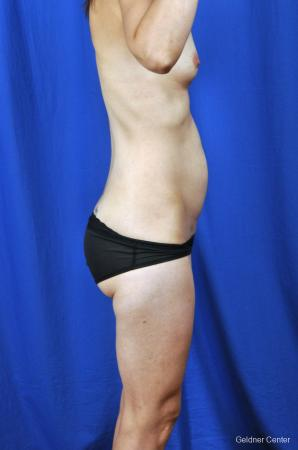 Tummy Tuck: Patient 6 - Before Image 2