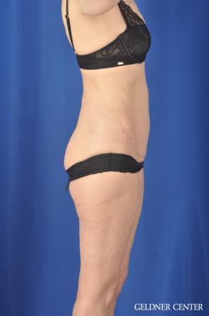 Liposuction: Patient 33 - After 3