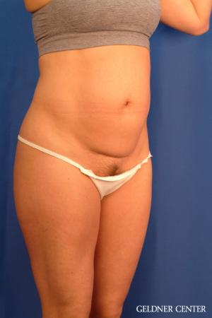 Tummy Tuck: Patient 34 - Before Image 2