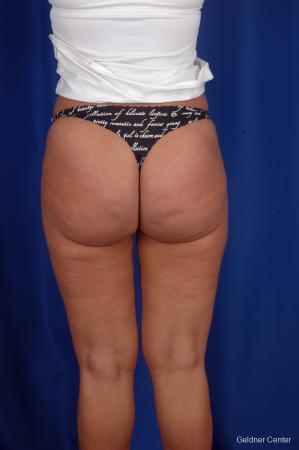 Liposuction: Patient 7 - After Image 4