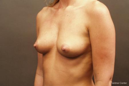 Breast Augmentation Streeterville, Chicago 2425 - Before and After Image 4