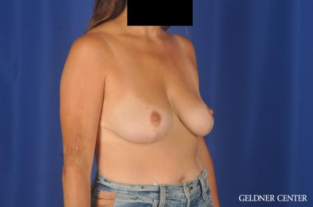 Breast Reduction: Patient 13 - After Image 3