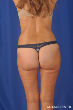 Liposuction: Patient 47 - After Image 4