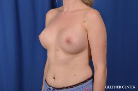 Breast Augmentation: Patient 137 - After Image 4