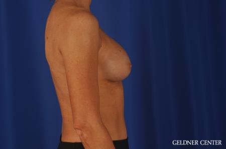 Chicago Breast Augmentation 8745 -  After Image 2