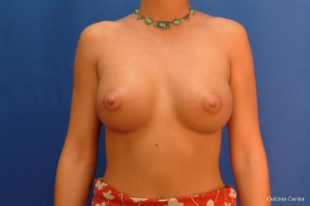 Breast Augmentation Hinsdale, Chicago 2438 -  After Image 1