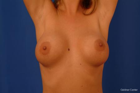 Breast Augmentation Lake Shore Dr, Chicago 2533 - Before and After Image 5
