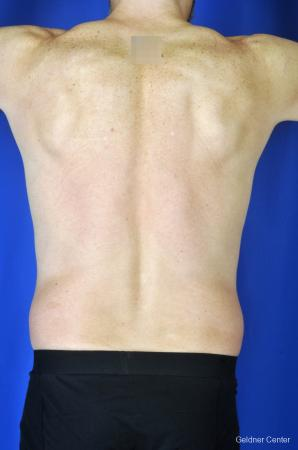 Liposuction For Men: Patient 7 - Before and After Image 5