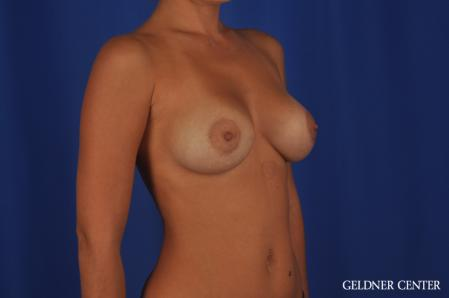 Breast Augmentation: Patient 109 - After Image 2