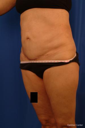 Vaser lipo patient 2536 before and after photos -  After Image 4