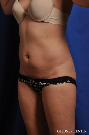 Tummy Tuck: Patient 32 - Before and After Image 4