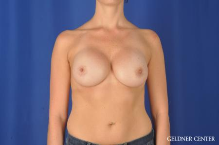 Chicago Breast Augmentation 11868 -  After Image 1