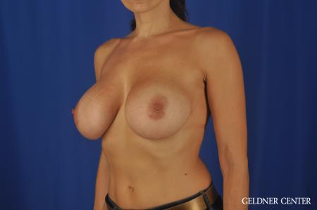 Chicago Breast Augmentation 5475 -  After Image 4