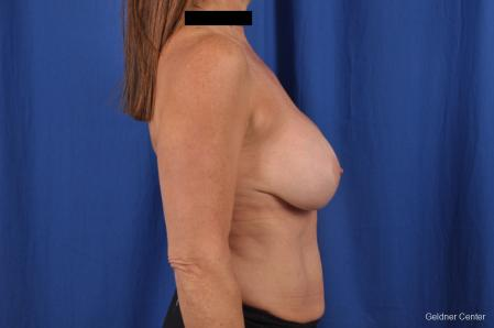 Breast Lift: Patient 43 - Before Image 2