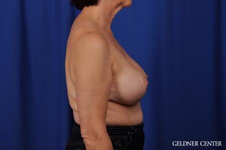 Chicago Breast Augmentation 4285 -  After Image 3