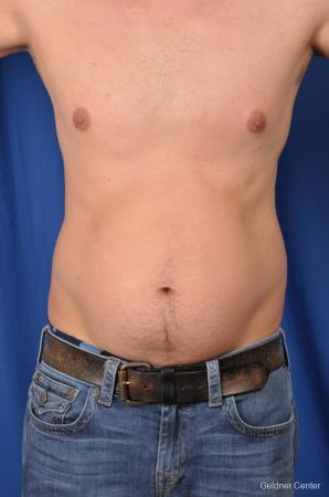 Liposuction-for-men: Patient 5 - Before Image