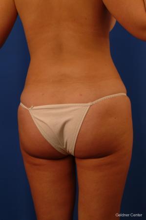 Liposuction: Patient 13 - After Image 4