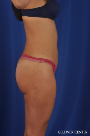 Liposuction: Patient 22 - After Image 3