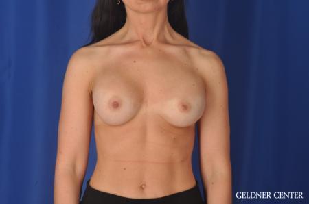 Complex Breast Augmentation: Patient 33 - Before Image 1
