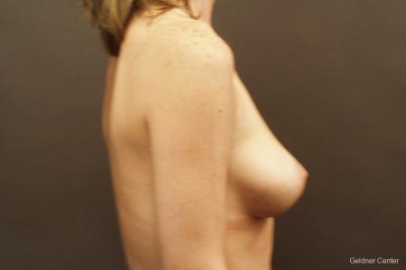 Chicago Breast Lift 2537 - Before Image 2