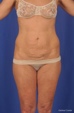 Lipoabdominoplasty: Patient 2 - Before Image