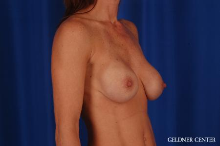 Breast Lift: Patient 46 - Before Image 2