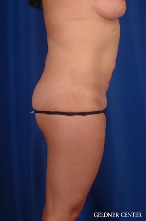 Liposuction: Patient 46 - After Image 3
