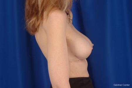 Chicago Breast Augmentation 2397 -  After Image 2