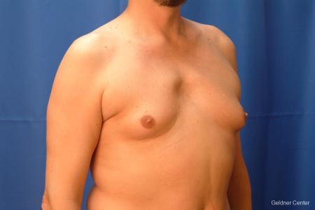 Gynecomastia: Patient 6 - Before Image 3