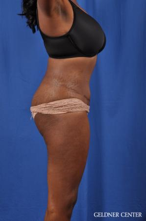 Abdominoplasty: Patient 6 - After Image 3