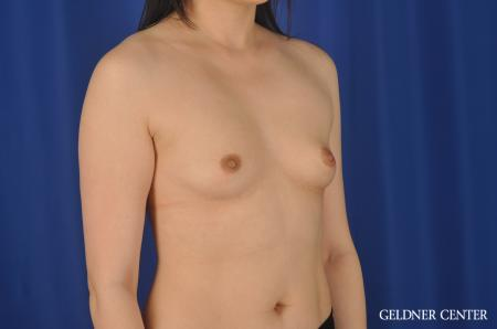 Breast Augmentation Hinsdale, Chicago 8751 - Before Image 3