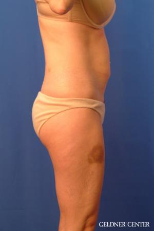 Tummy Tuck: Patient 36 - Before Image 3